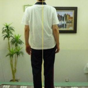 「体の歪み」体の形
