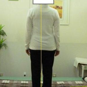「股関節の異常」と「体の形」