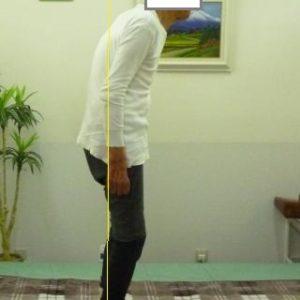 「腰痛と腰の曲がり」の「体の形」
