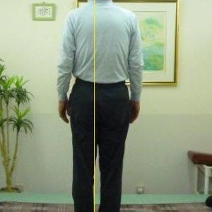 「坐骨神経痛」体の形