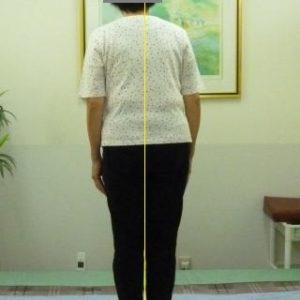 「腰椎」体の形