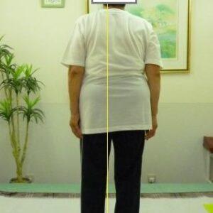 「脊柱管」体の形