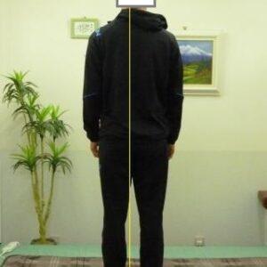 「背中の痛み」体の形