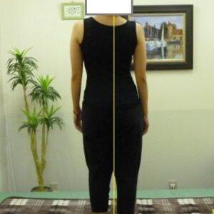 「体の歪み・腰痛」体の形