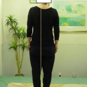 「腰痛・産後の骨盤の歪み」体の形
